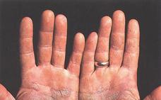 Un tercio de los casos de psoriasis se produce antes de los 20 años