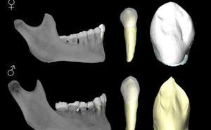 Un nuevo método forense para identificar el sexo de restos humanos con una fiabilidad del 92%