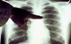 Una investigación española logra reducir los tumores de pulmón en un 80% de los pacientes tratados