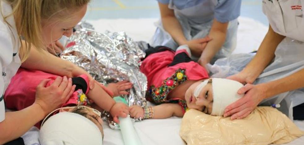 Una complicada operación consigue separar a dos siamesas unidas por la cabeza