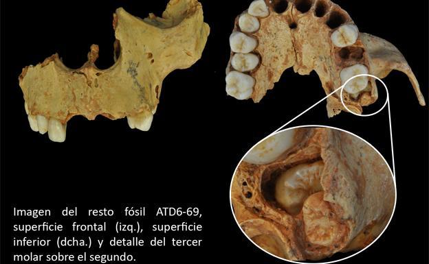 El Homo antecesor hallado en Atapuerca ya padecía problemas derivados de no poseer el espacio suficiente para la muela del juicio